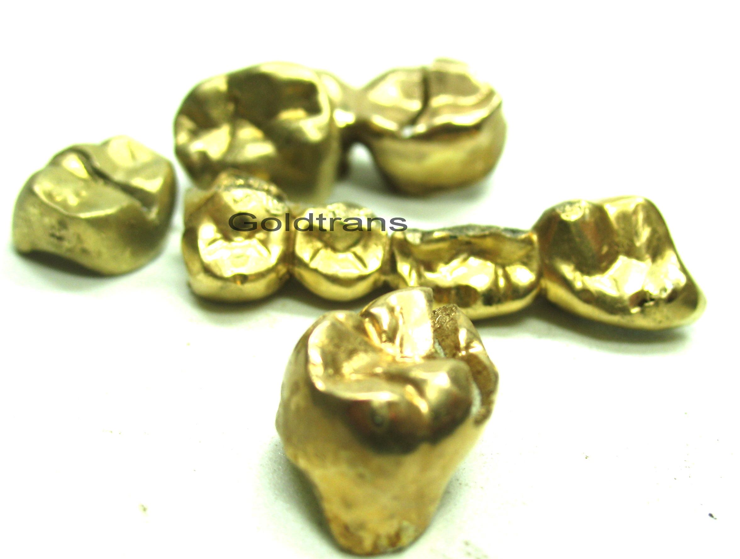 zahngold ankauf versilbern sie ihr zahngold goldankauf. Black Bedroom Furniture Sets. Home Design Ideas